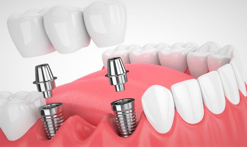 Quelles sont les différentes techniques possibles pour remplacer une dent absente ?